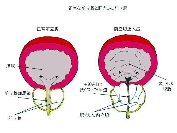 進行性前立腺癌の骨転移は6ヶ月間の生存を予測し、10年後の奇跡的な生存を予測する